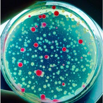 Análise microbiológica de água
